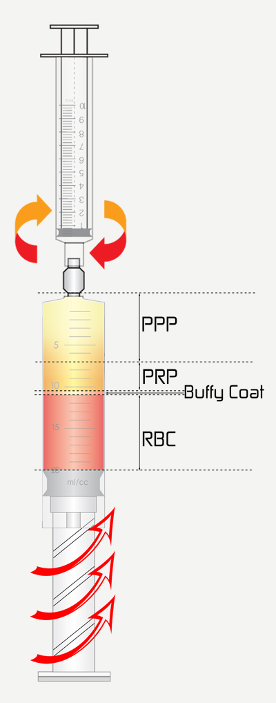 Yes PRP Kit Advantages - PPP, PRP, Buffy Coat and RBC Illustration